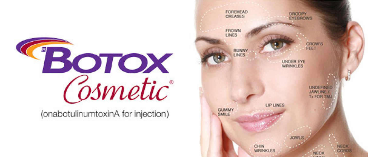 Botox Cosmetic (Onabotulinum Toxin A)