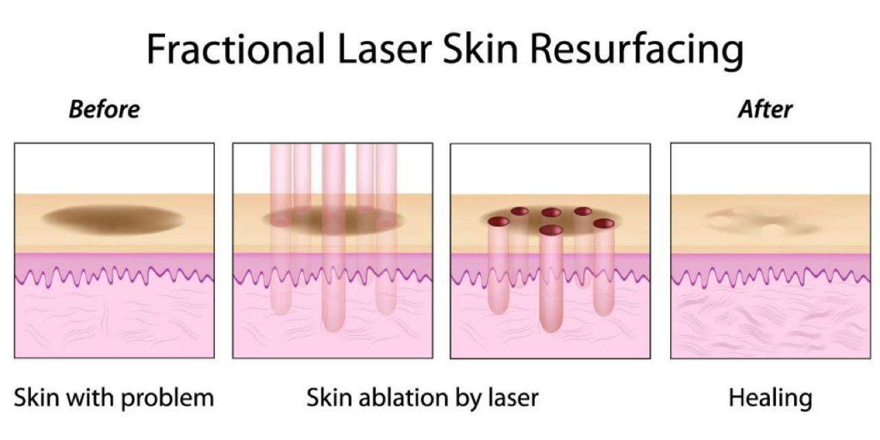fractional CO2 laser skin
