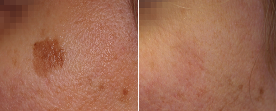 Nd:YAG laser treatment Pigmented lesions