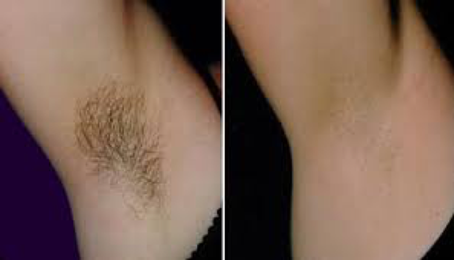 Nd:YAG laser treatment  Hair removal