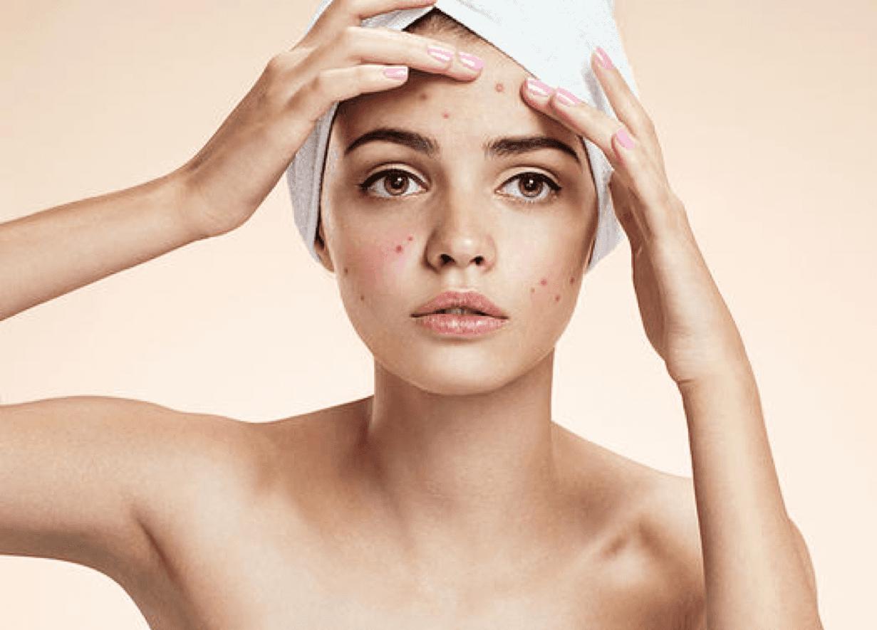 Acne skin Face Treatment in Aesthetic medicine
