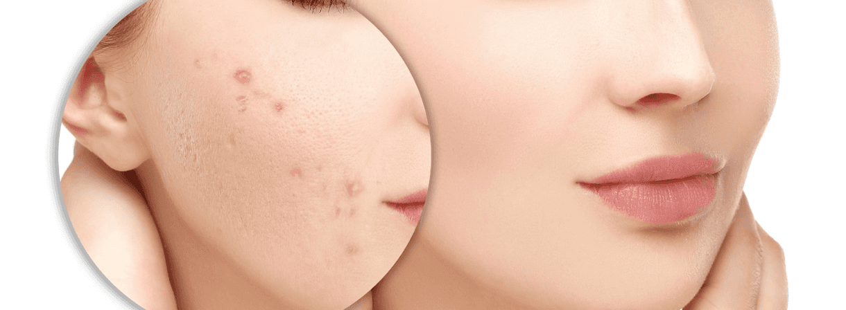 Acne scars Face Treatment in Aesthetic medicine