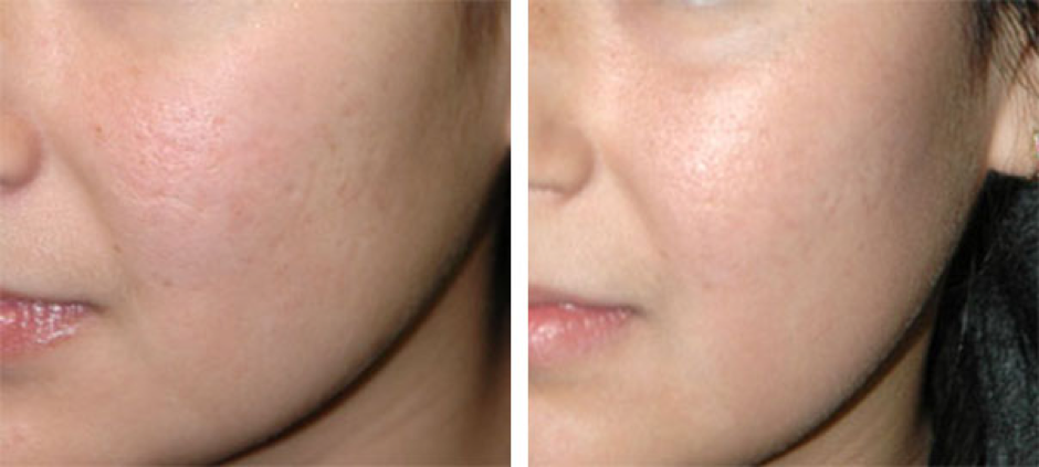 Fractional CO2 laser treatments