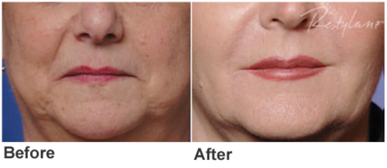 Restylane® The leading dermal filler