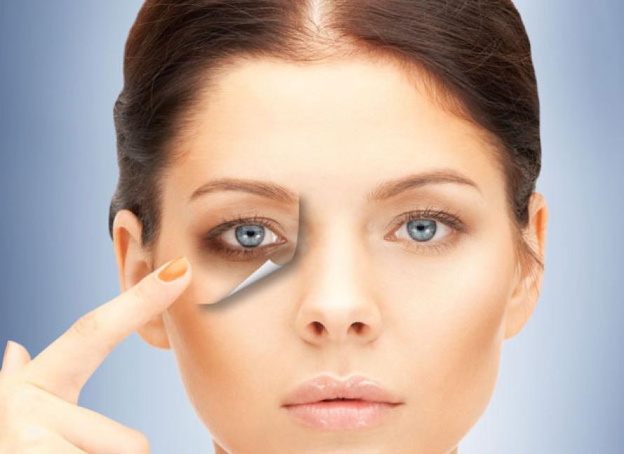 Under Eyes Treatment Dark eye circle in Aesthetic medicine
