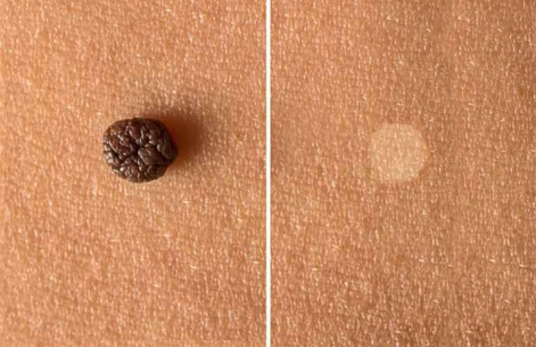 Skin tag Face Treatment in Aesthetic medicine