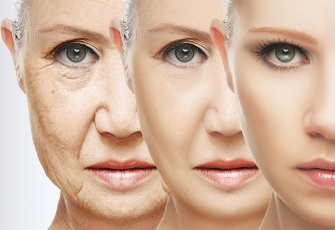 Facial wrinkle Face Treatment in Aesthetic medicine
