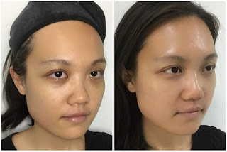 Minimally invasive nose thread lift featuring Vogue Clinic