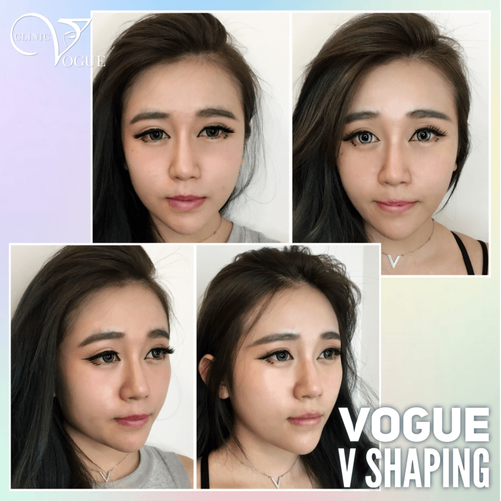 V Shape Face Treatment Malaysia - Get Slimmer And Attractive