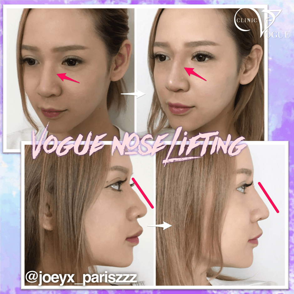 Nose Filler Malaysia | Non-Surgical And Painless (Natural