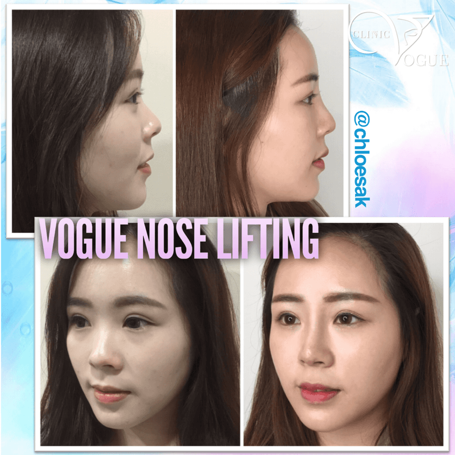 Nose Filler Malaysia | Non-Surgical And Painless (Natural Results)